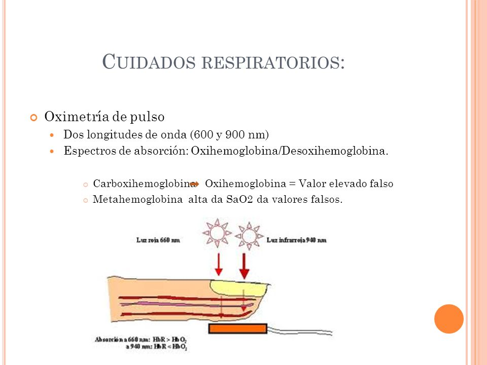 Cuidados respiratorios: