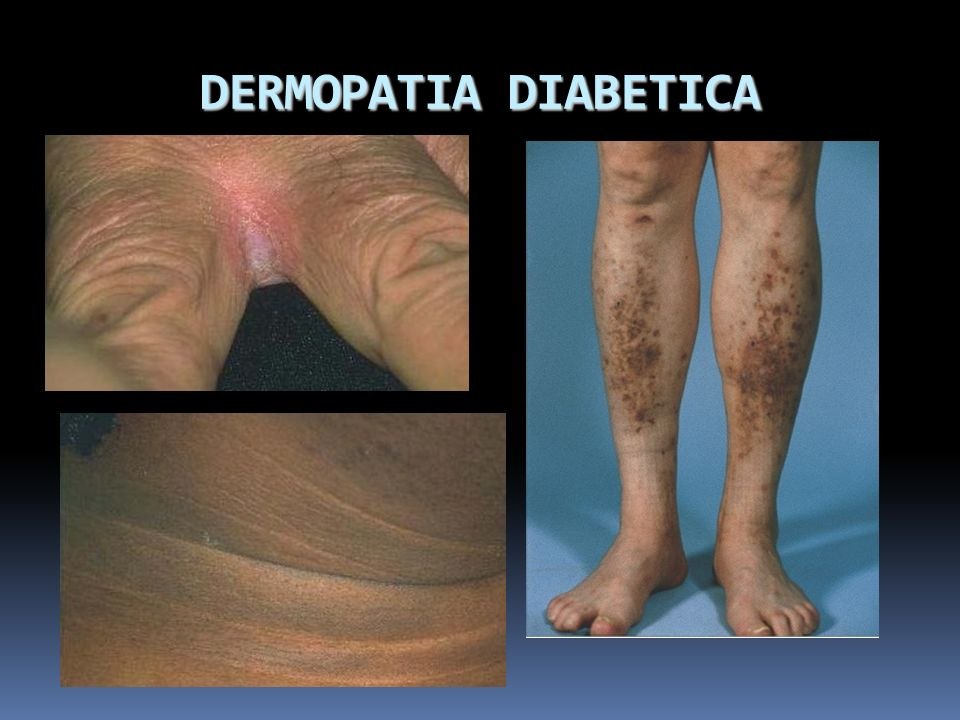 DERMOPATIA DIABETICA
