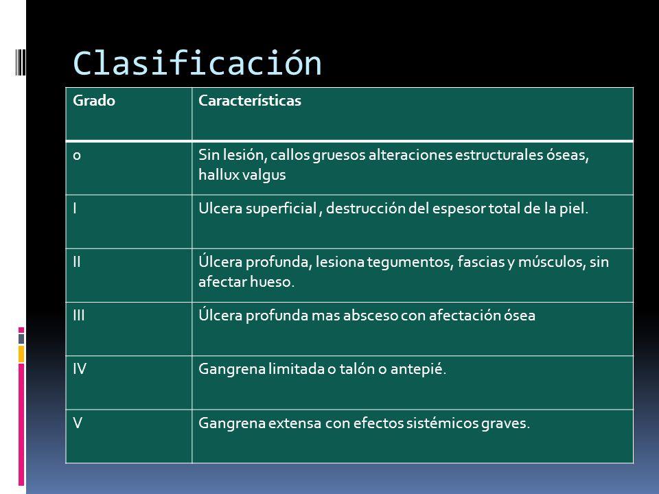 Clasificación Grado Características