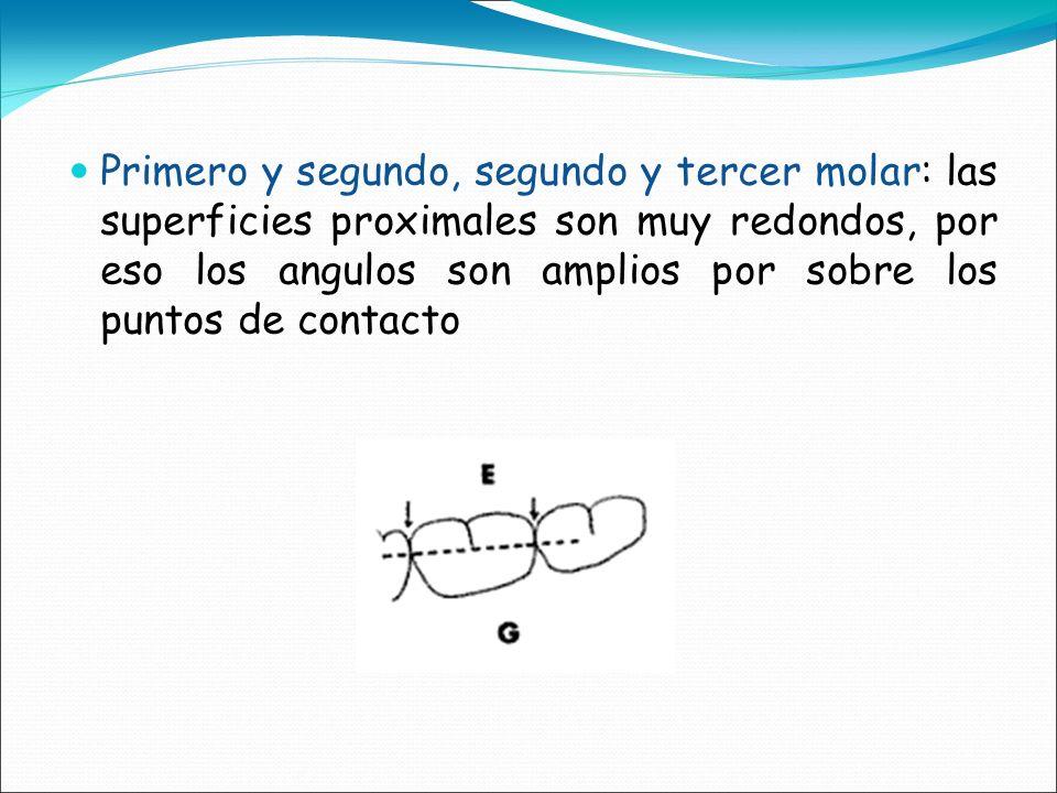 Primero y segundo, segundo y tercer molar: las superficies proximales son muy redondos, por eso los angulos son amplios por sobre los puntos de contacto
