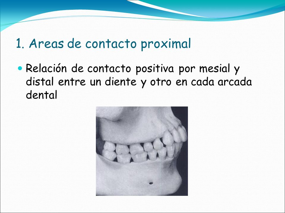 1. Areas de contacto proximal