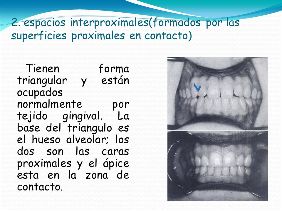 2. espacios interproximales(formados por las superficies proximales en contacto)