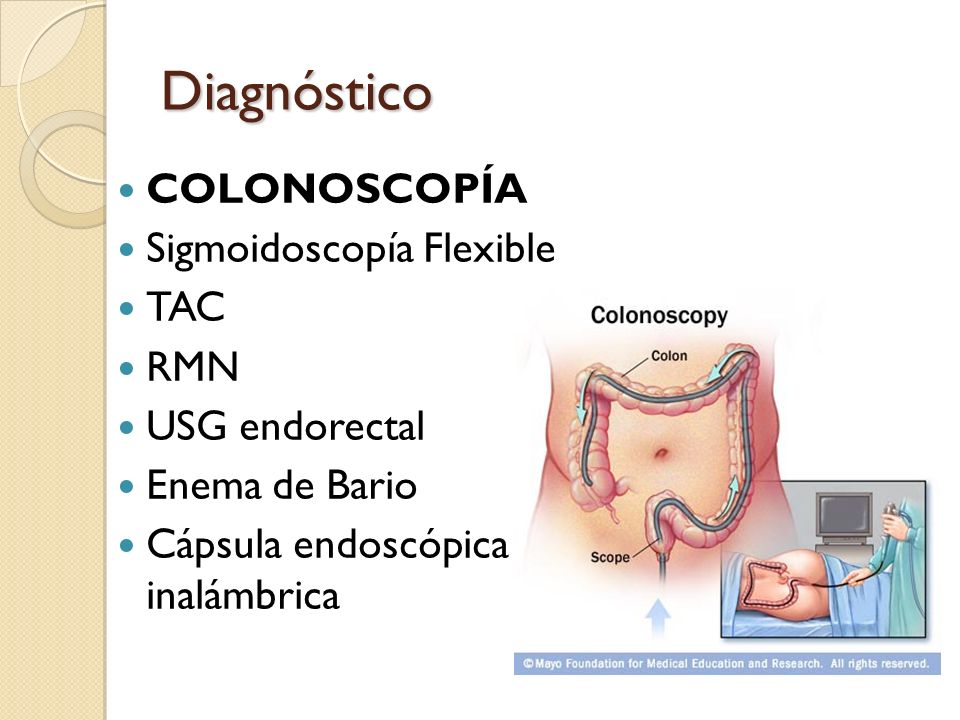Diagnóstico COLONOSCOPÍA Sigmoidoscopía Flexible TAC RMN
