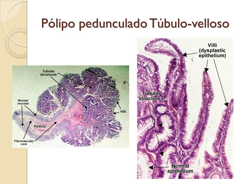 Pólipo pedunculado Túbulo-velloso