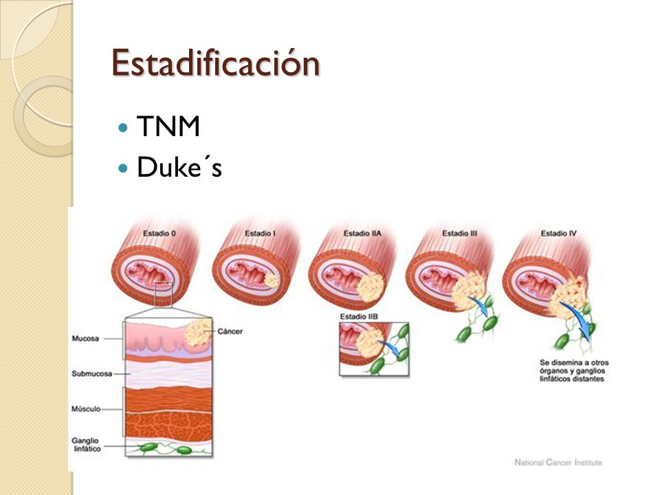 Estadificación TNM Duke´s