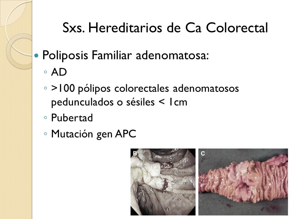 Sxs. Hereditarios de Ca Colorectal