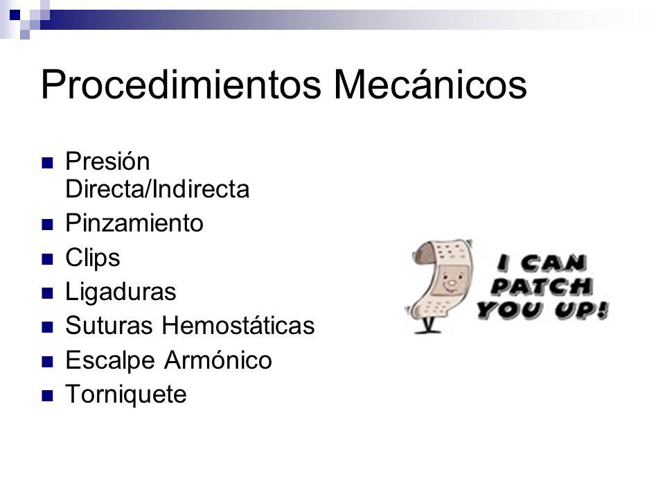 Procedimientos Mecánicos