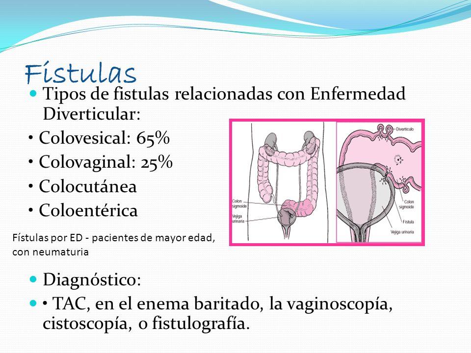 Fistulas Tipos de fistulas relacionadas con Enfermedad Diverticular: