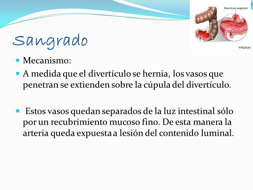 SangradoMecanismo: A medida que el divertículo se hernia, los vasos que penetran se extienden sobre la cúpula del divertículo.