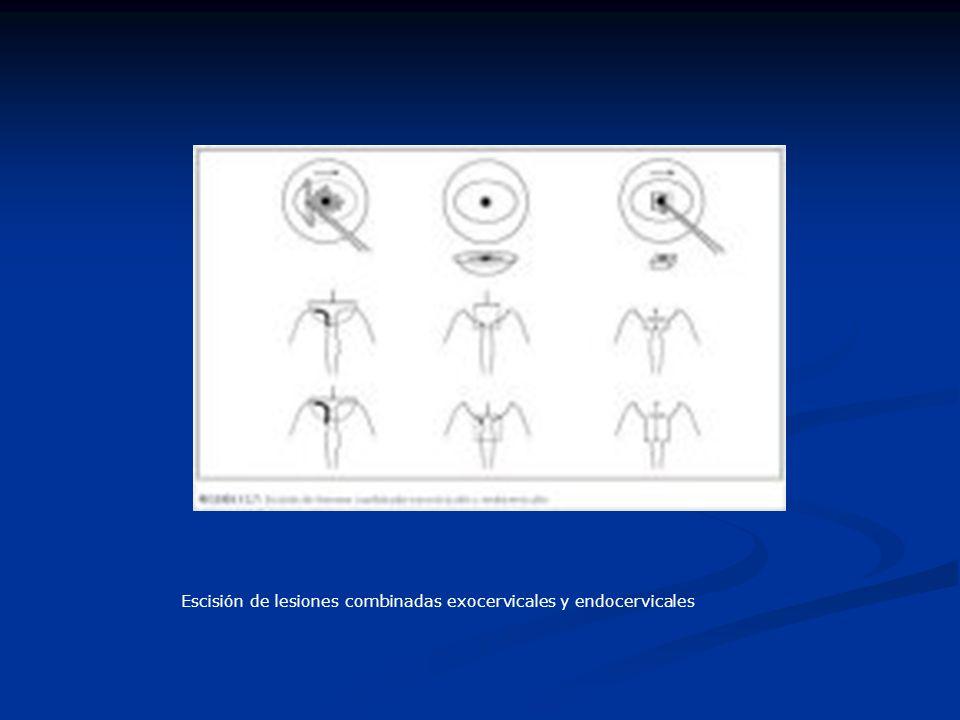 Escisión de lesiones combinadas exocervicales y endocervicales