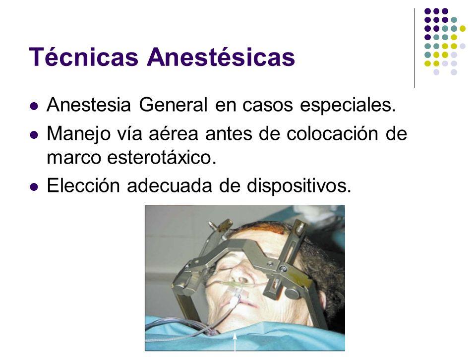 Técnicas Anestésicas Anestesia General en casos especiales.