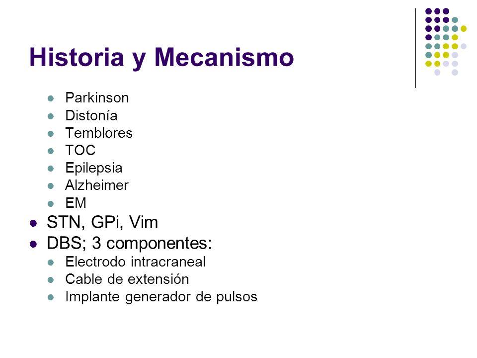 Historia y Mecanismo STN, GPi, Vim DBS; 3 componentes: Parkinson
