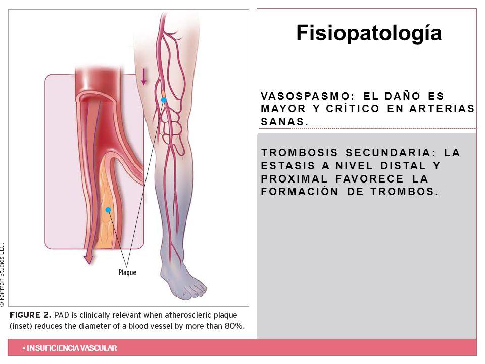 Fisiopatología Vasospasmo: El daño es mayor y crítico en arterias sanas.