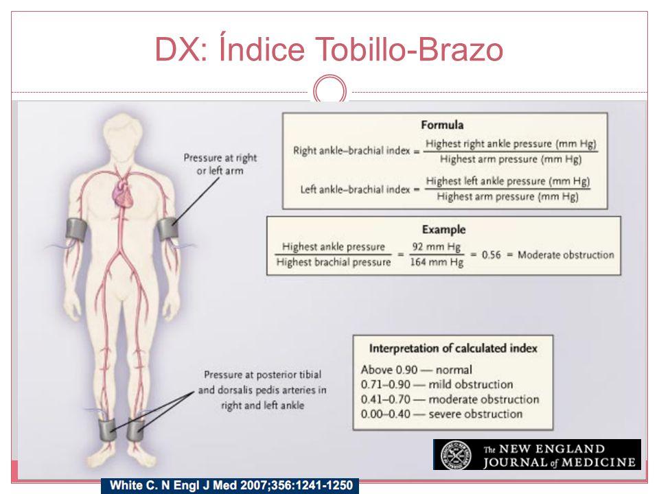 DX: Índice Tobillo-Brazo