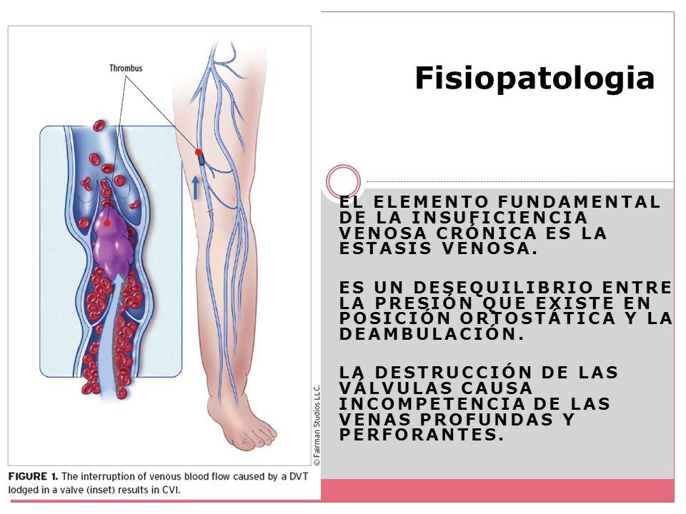 Fisiopatologia El elemento fundamental de la insuficiencia venosa crónica es la estasis venosa.
