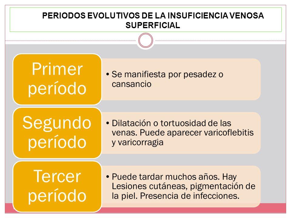 PERIODOS EVOLUTIVOS DE LA INSUFICIENCIA VENOSA SUPERFICIAL