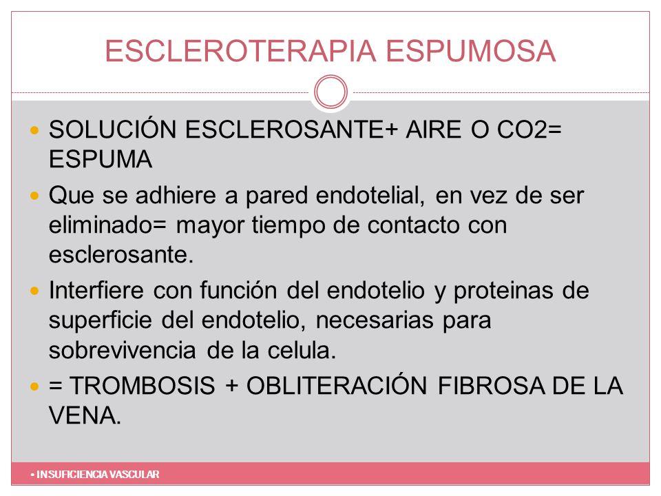 ESCLEROTERAPIA ESPUMOSA