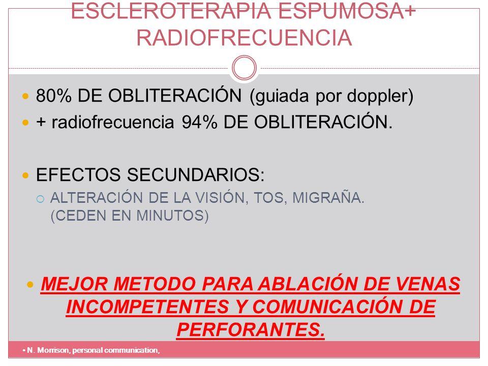 ESCLEROTERAPIA ESPUMOSA+ RADIOFRECUENCIA
