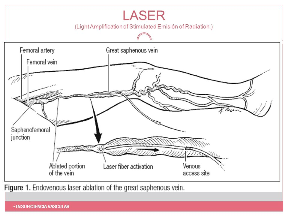 LASER (Light Amplification of Stimulated Emisión of Radiation.)