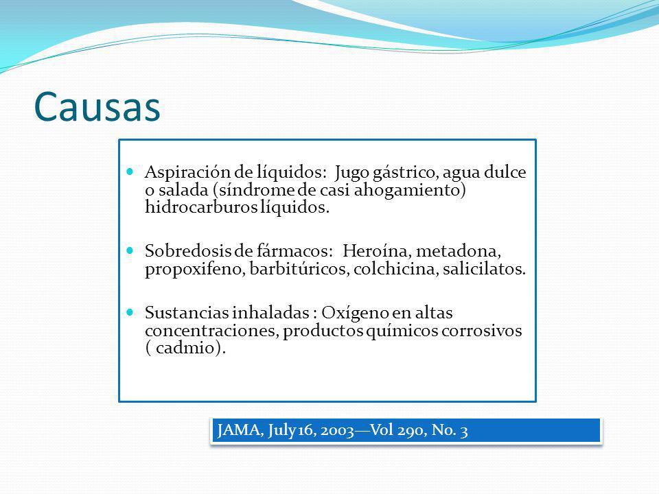 Causas Aspiración de líquidos: Jugo gástrico, agua dulce o salada (síndrome de casi ahogamiento) hidrocarburos líquidos.