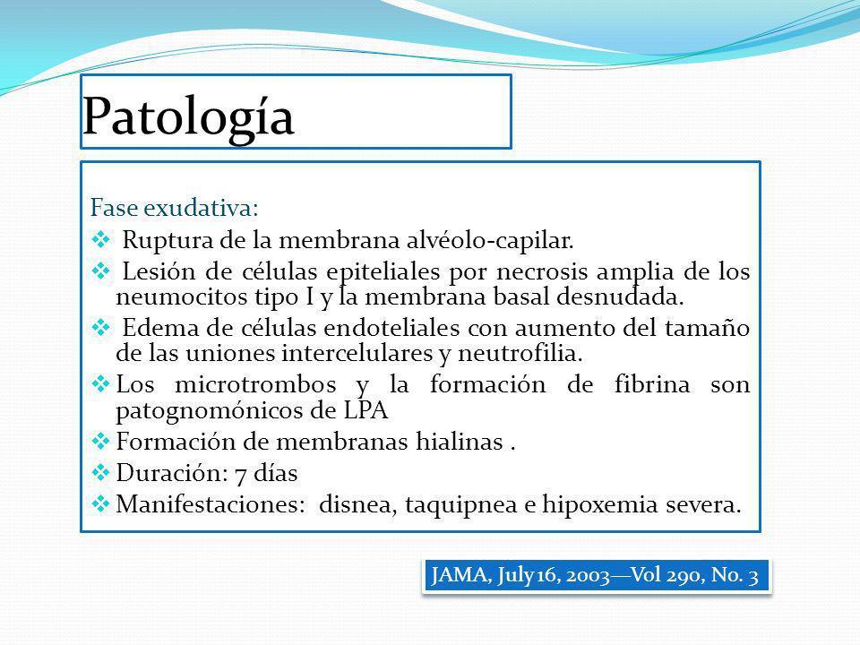 Patología Fase exudativa: Ruptura de la membrana alvéolo-capilar.