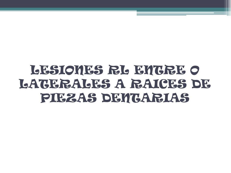 LESIONES RL ENTRE O LATERALES A RAICES DE PIEZAS DENTARIAS