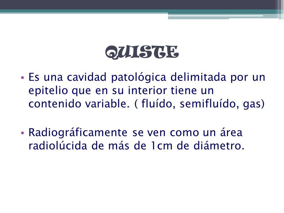 QUISTE Es una cavidad patológica delimitada por un epitelio que en su interior tiene un contenido variable. ( fluído, semifluído, gas)