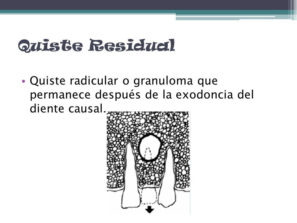 Quiste Residual Quiste radicular o granuloma que permanece después de la exodoncia del diente causal.