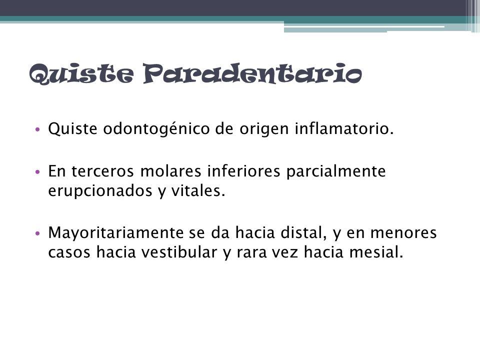 Quiste Paradentario Quiste odontogénico de origen inflamatorio.