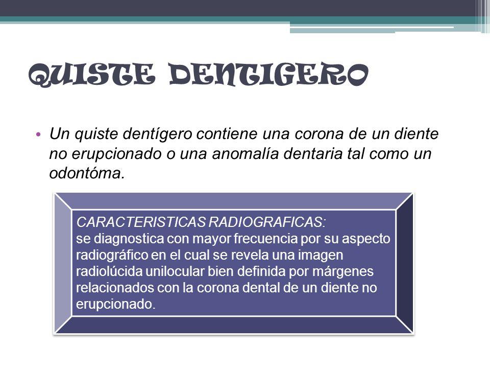 QUISTE DENTIGERO Un quiste dentígero contiene una corona de un diente no erupcionado o una anomalía dentaria tal como un odontóma.
