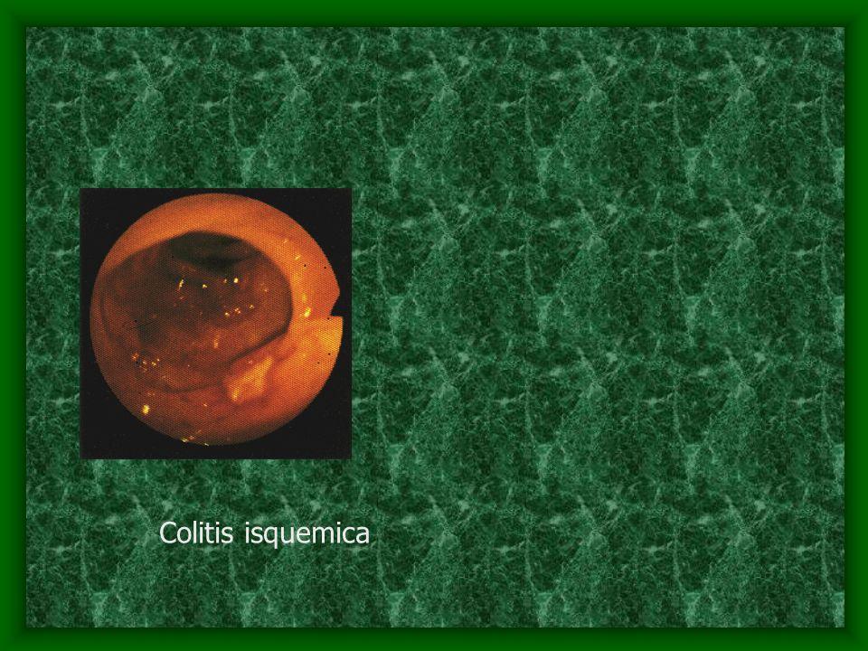 Colitis isquemica