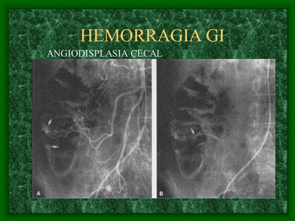 HEMORRAGIA GI ANGIODISPLASIA CECAL