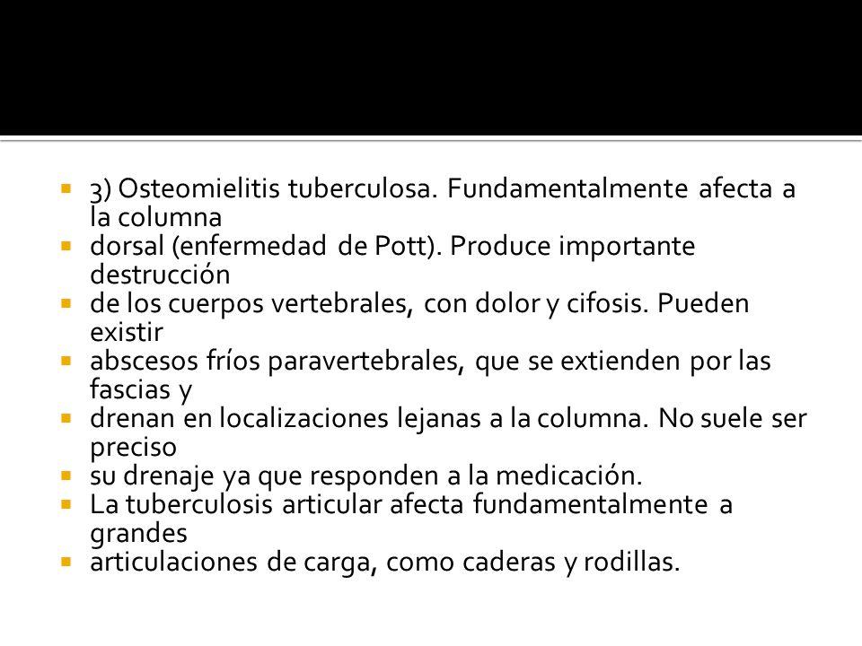 3) Osteomielitis tuberculosa. Fundamentalmente afecta a la columna