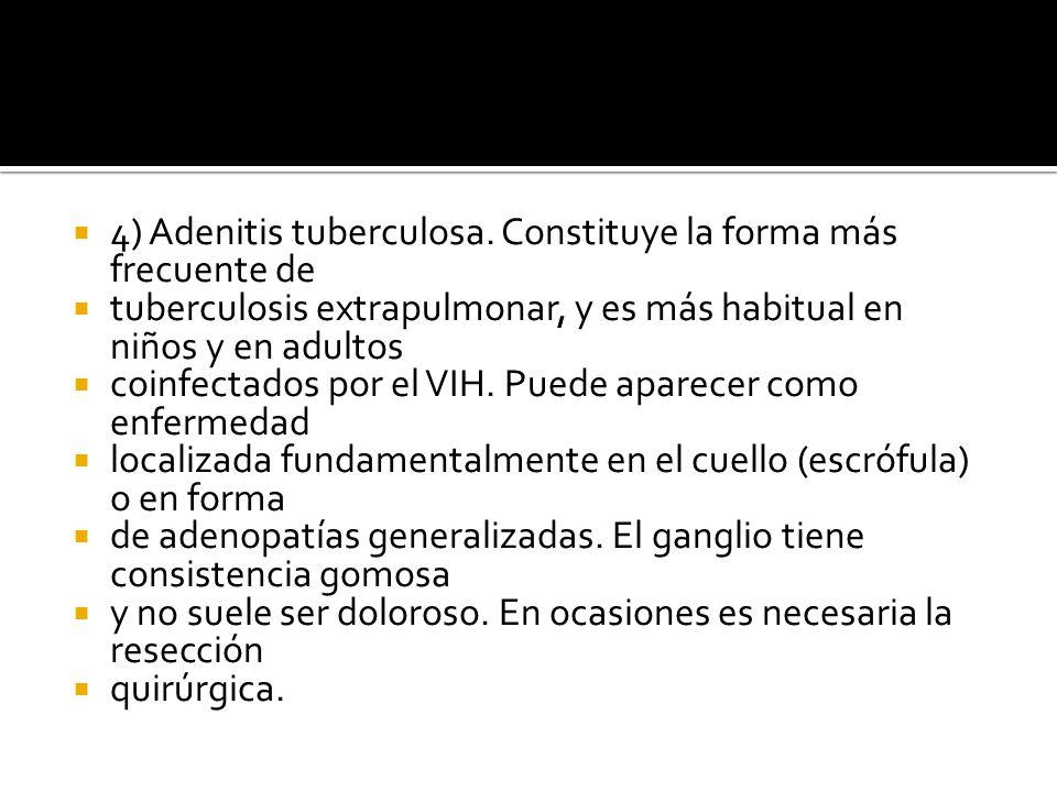 4) Adenitis tuberculosa. Constituye la forma más frecuente de