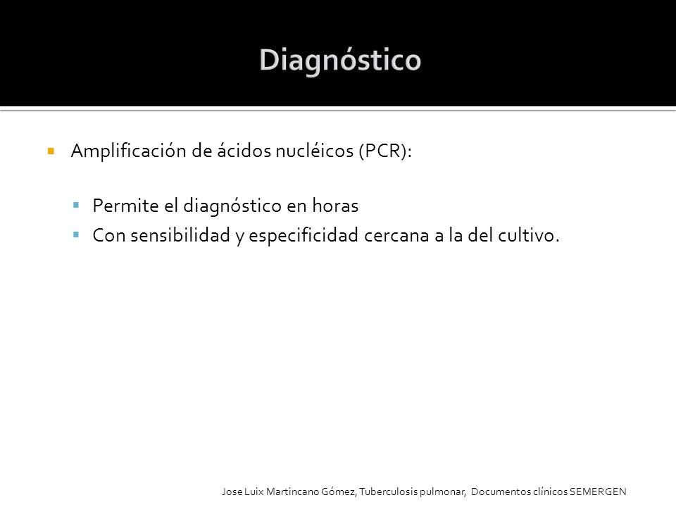 Diagnóstico Amplificación de ácidos nucléicos (PCR):