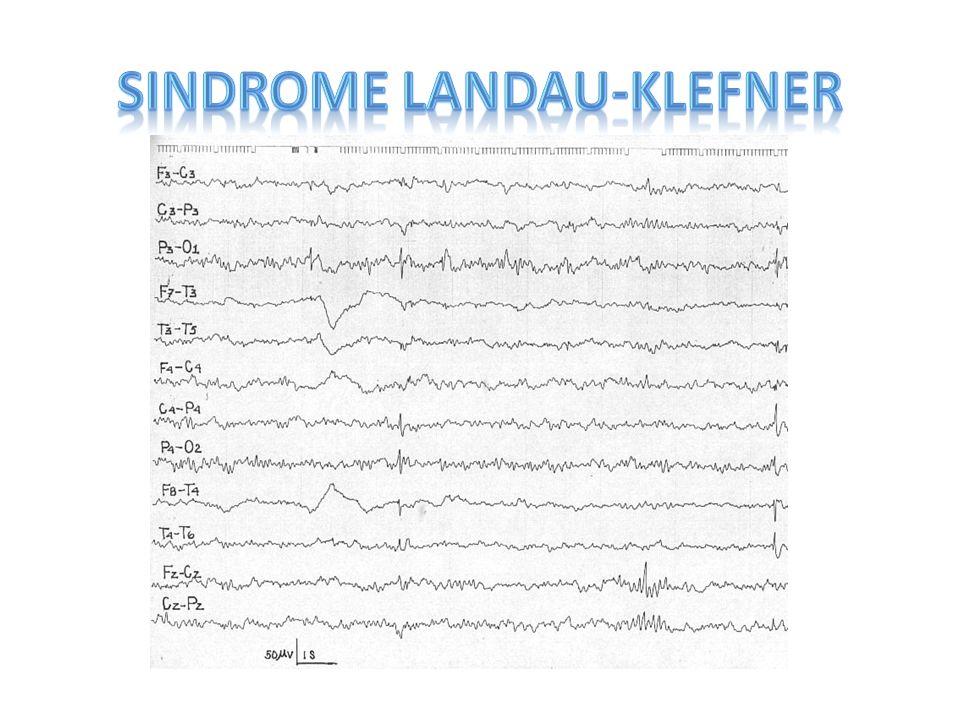 SINDROME LANDAU-KLEFNER