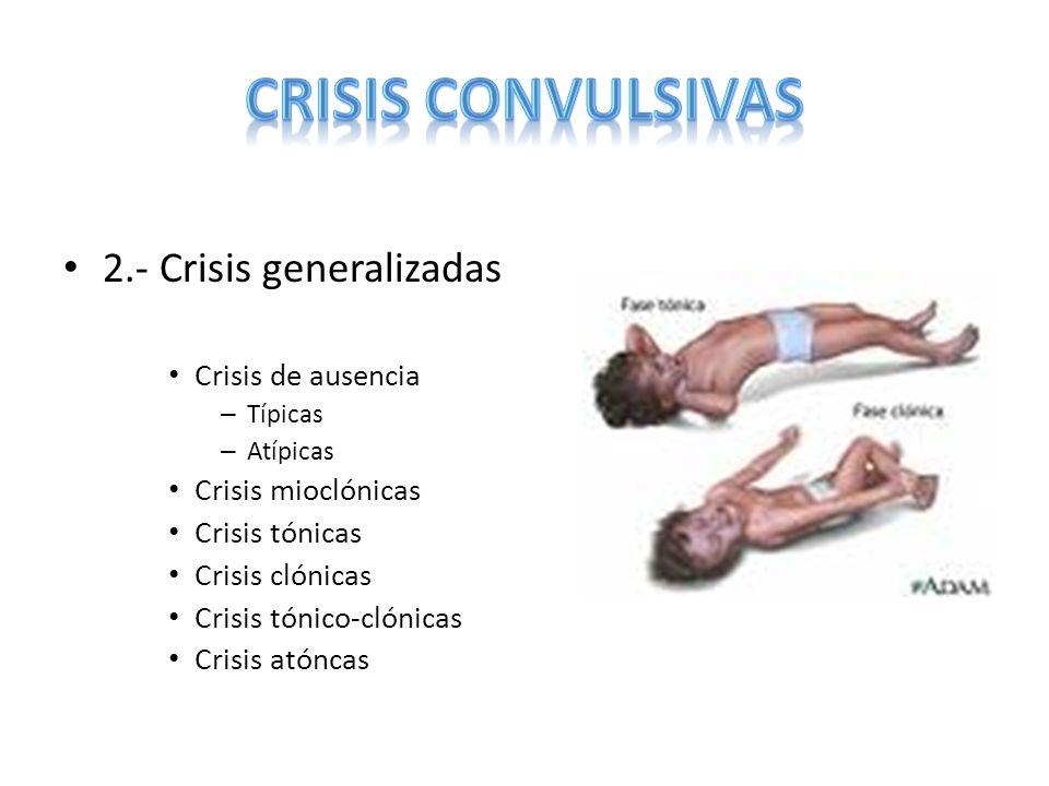CRISIS CONVULSIVAS 2.- Crisis generalizadas Crisis de ausencia