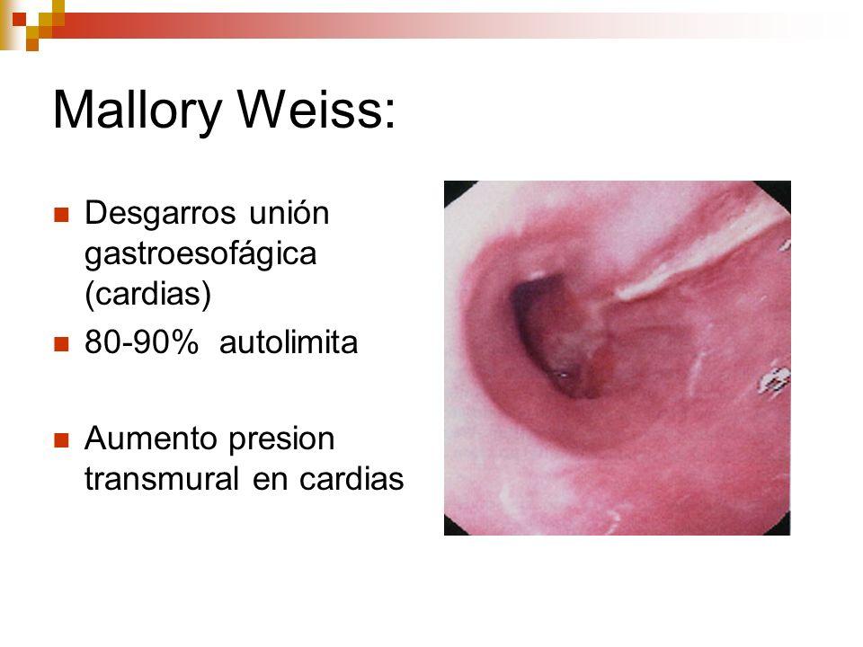 Mallory Weiss: Desgarros unión gastroesofágica (cardias)