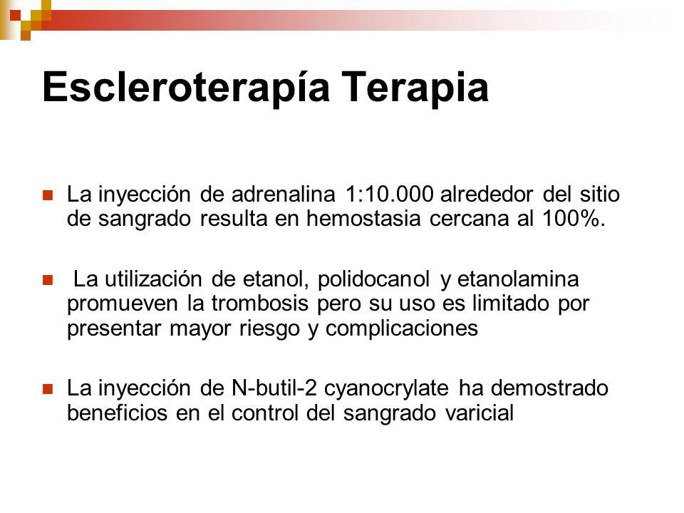 Escleroterapía Terapia
