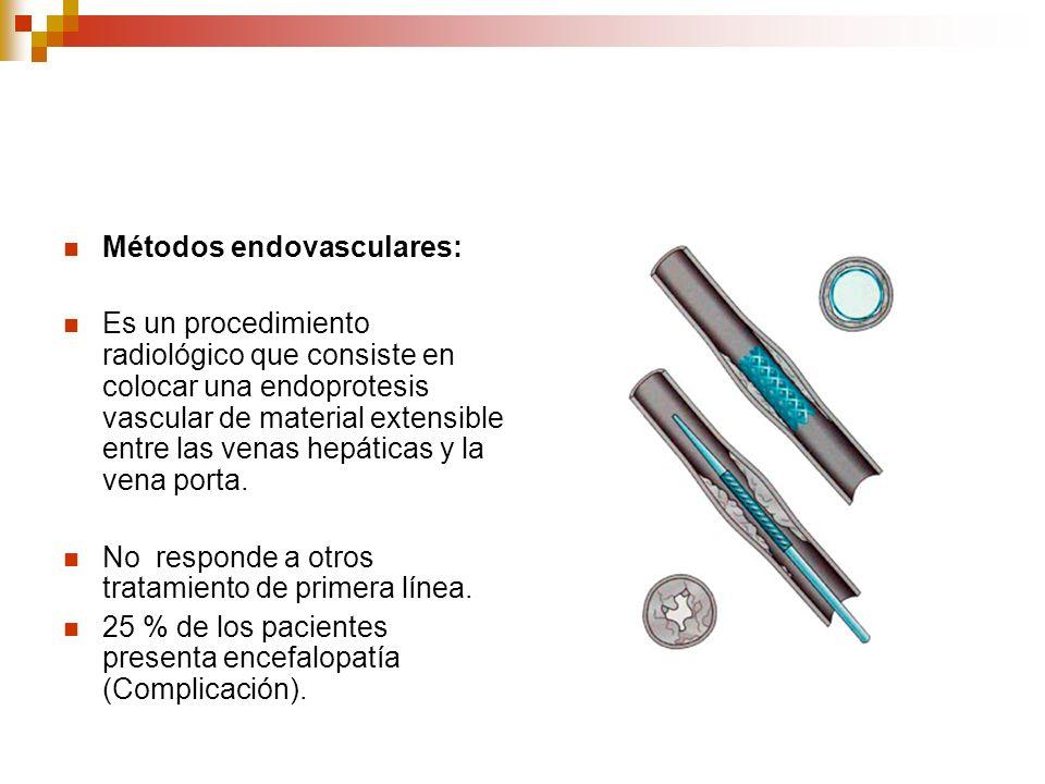 Métodos endovasculares:
