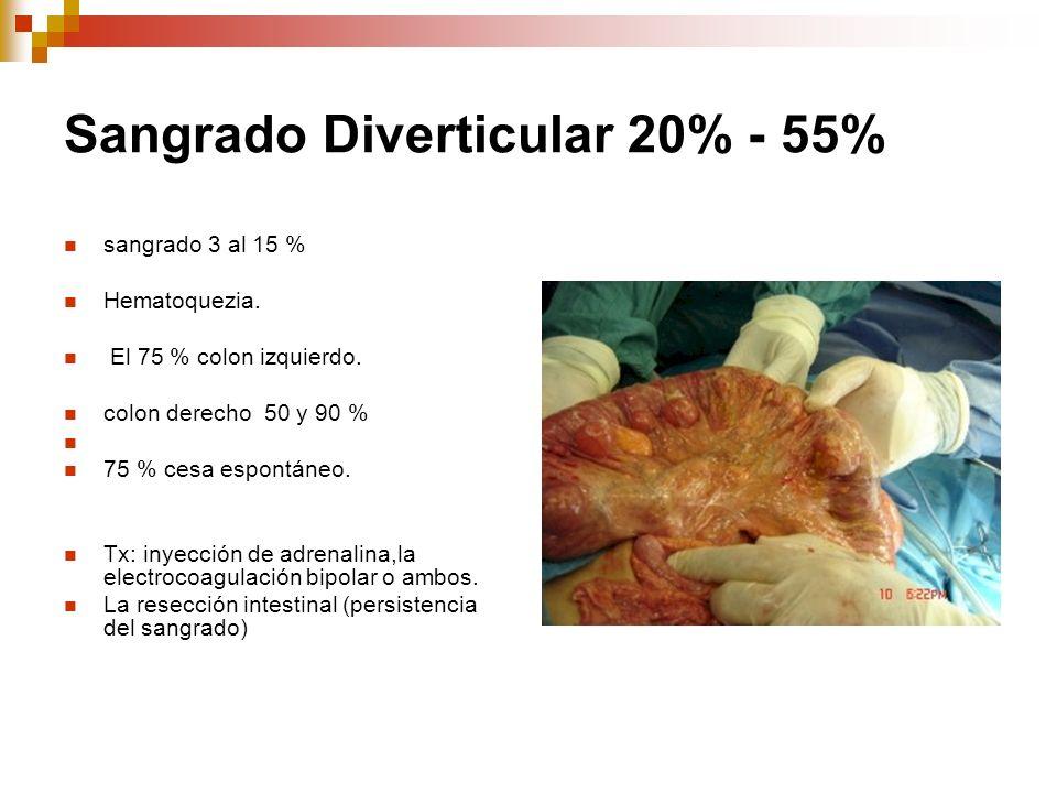 Sangrado Diverticular 20% - 55%