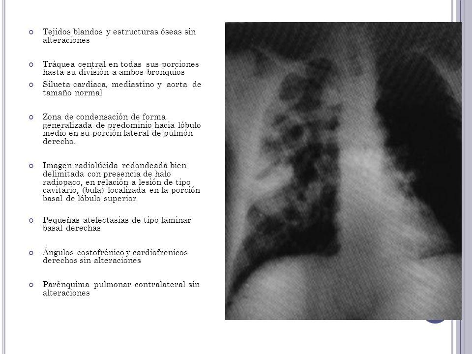 Tejidos blandos y estructuras óseas sin alteraciones