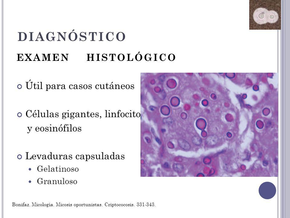 DIAGNÓSTICO EXAMEN HISTOLÓGICO Útil para casos cutáneos