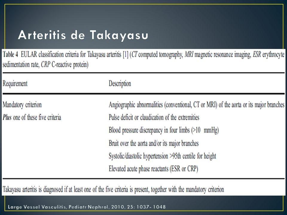 Arteritis de Takayasu Large Vessel Vasculitis, Pediatr Nephrol, 2010, 25: 1037- 1048