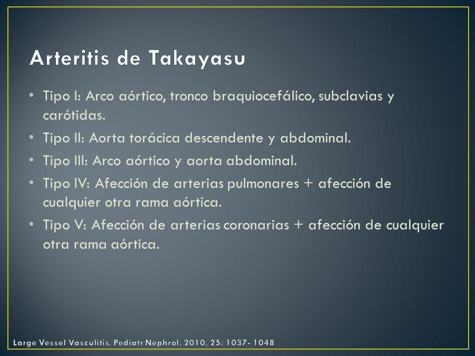 Arteritis de Takayasu Tipo I: Arco aórtico, tronco braquiocefálico, subclavias y carótidas. Tipo II: Aorta torácica descendente y abdominal.