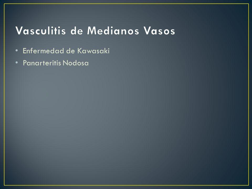 Vasculitis de Medianos Vasos