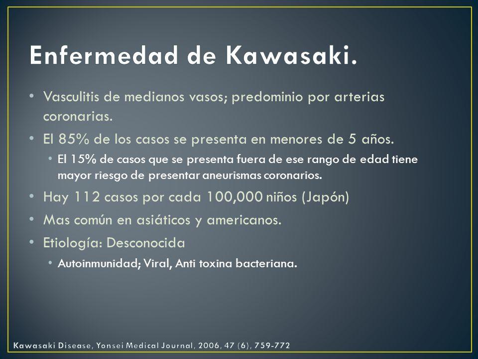 Enfermedad de Kawasaki.