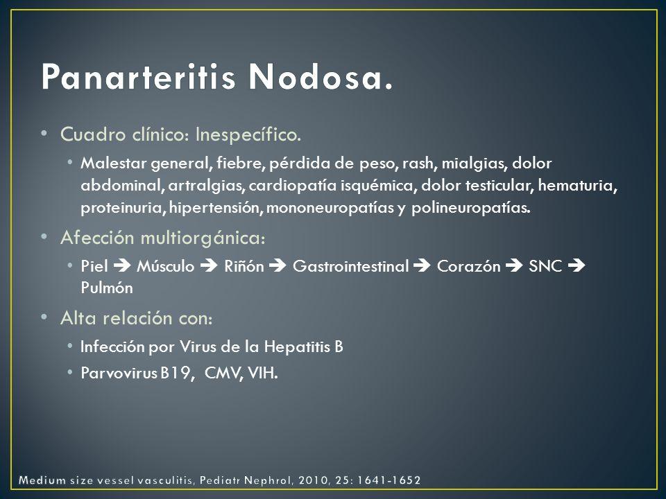 Panarteritis Nodosa. Cuadro clínico: Inespecífico.