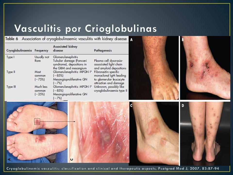Vasculitis por Crioglobulinas
