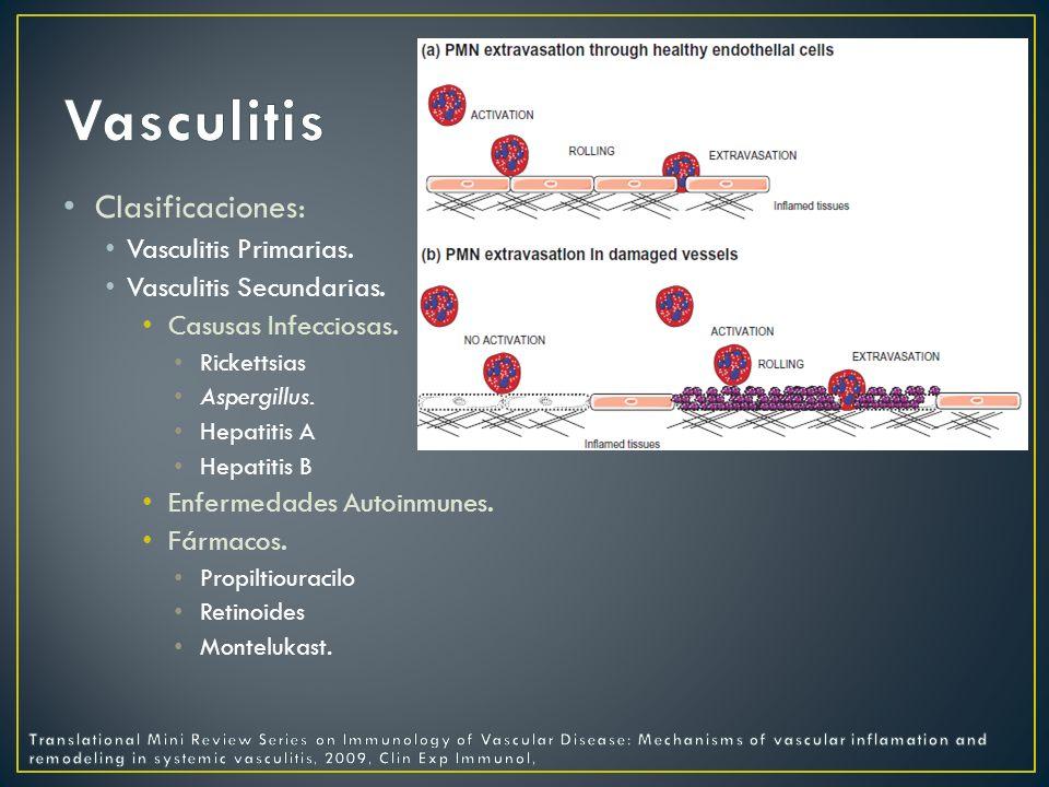 Vasculitis Clasificaciones: Vasculitis Primarias.